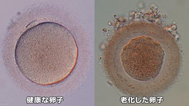 正常な卵子と老化した卵子