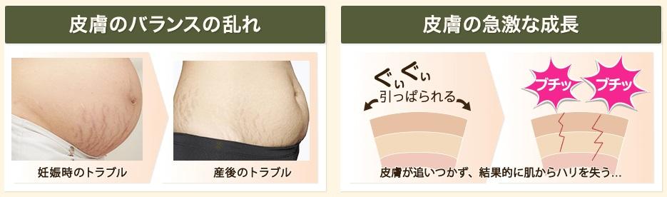 妊娠線を予防したいなら妊娠線クリームがおすすめ